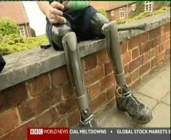 Suurbritannia sõdur on sõjas kaotanud jalad ja õpib nüüd uuesti kõndima. Uudisloos rõhutati, et sõjas kaotatud jalad või käed aitavad taastusravi järel ellu tagasi pöörduda. Kaader 26. mai 2010 BBC