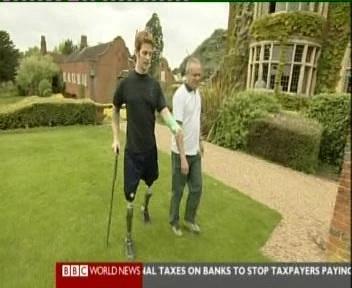 Jalad kaotanud sõdur harjutab taaskord kõndimist. BBC uudistest kaader 26. mai 2010